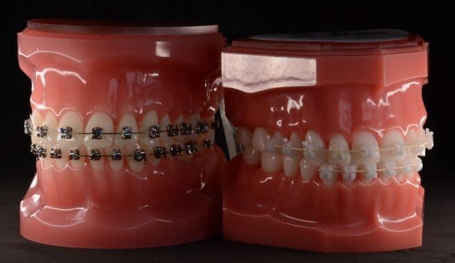 Feste Zahnspange